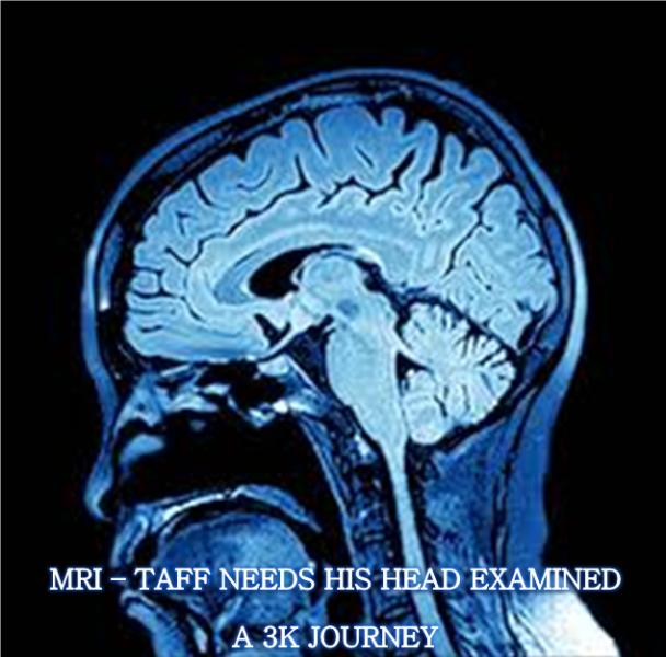 MRI.thumb.jpg.e2be880c0be04a0d5fd65ee1ed88efb7.jpg